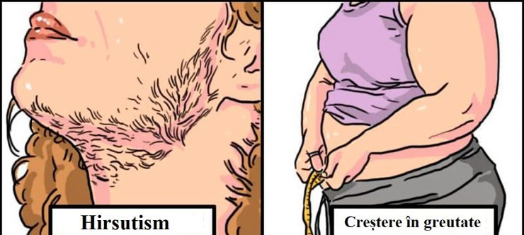 Ce simtomne ai cind intri la menopauza