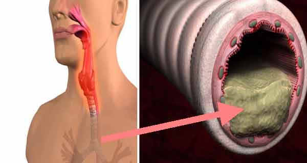 Papiloamele cutanate: tratament - CSID: Ce se întâmplă Doctore?